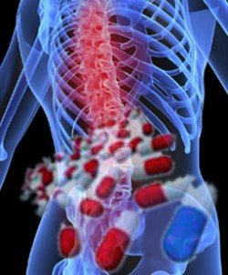 osteoporoza-01